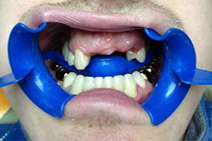 имплантация зубов цены в Москве