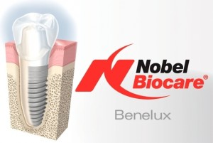 Протезирование на имплантатах Nobel Biocare